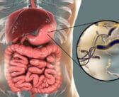 Diagnostic des infections pédiatriques à Helicobacter pylori par PCR dans les selles